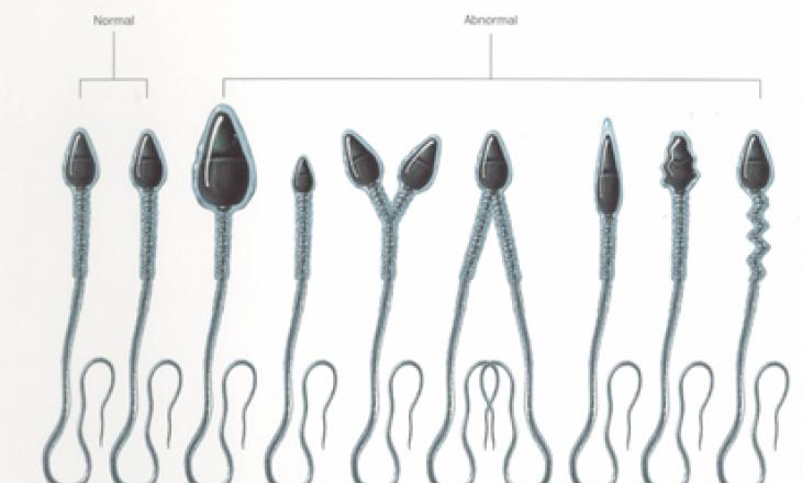 Большое колличество сперматозоидов с патологией головки
