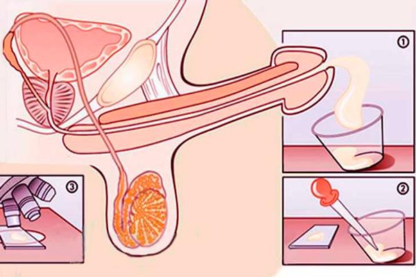 Сперма для здоровья