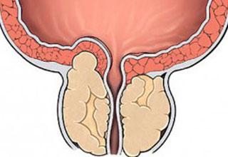 лечение простатита в москве клиники отзывы