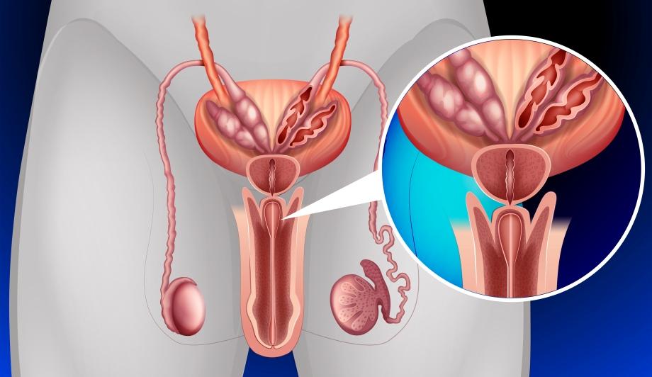 воспаление уретры и простаты