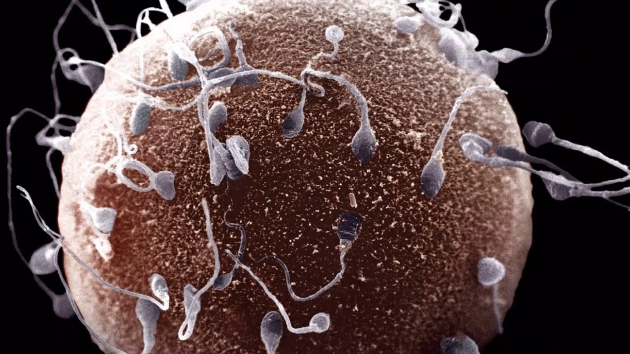 Чем увеличить количество и подвижность сперматозоидов