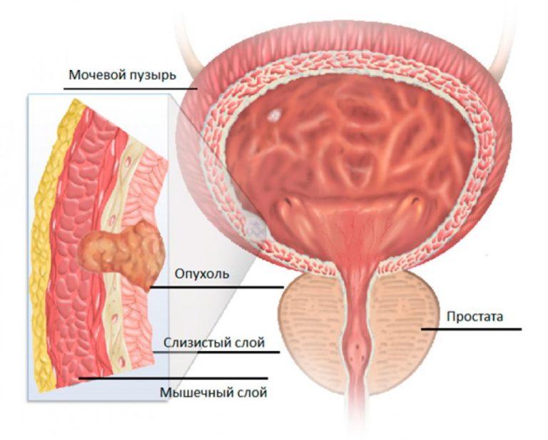 Простата вросла в мочевой пузырь что это