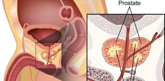 Простата причины и лечение