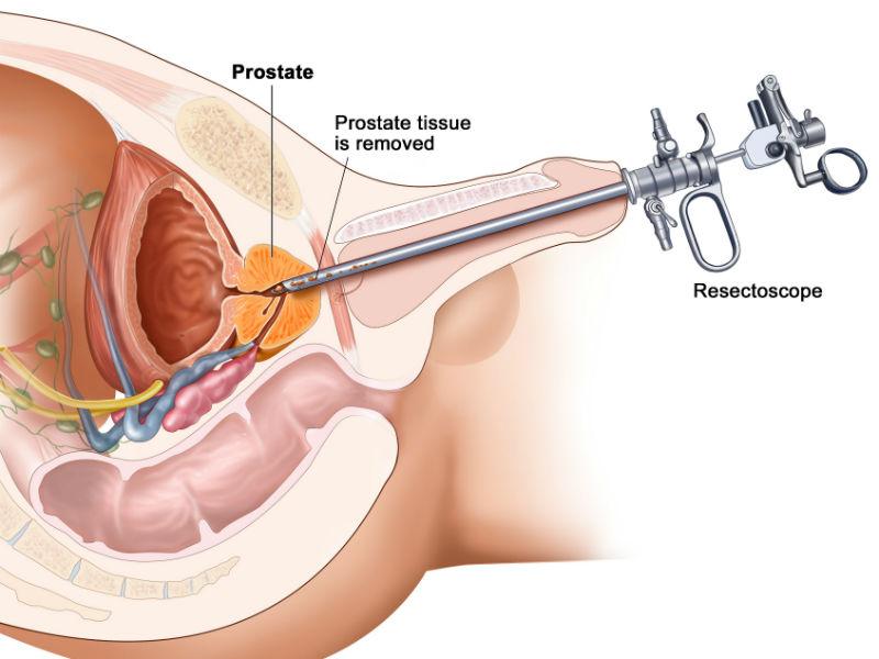 Трансуретральной резекцией предстательной железы