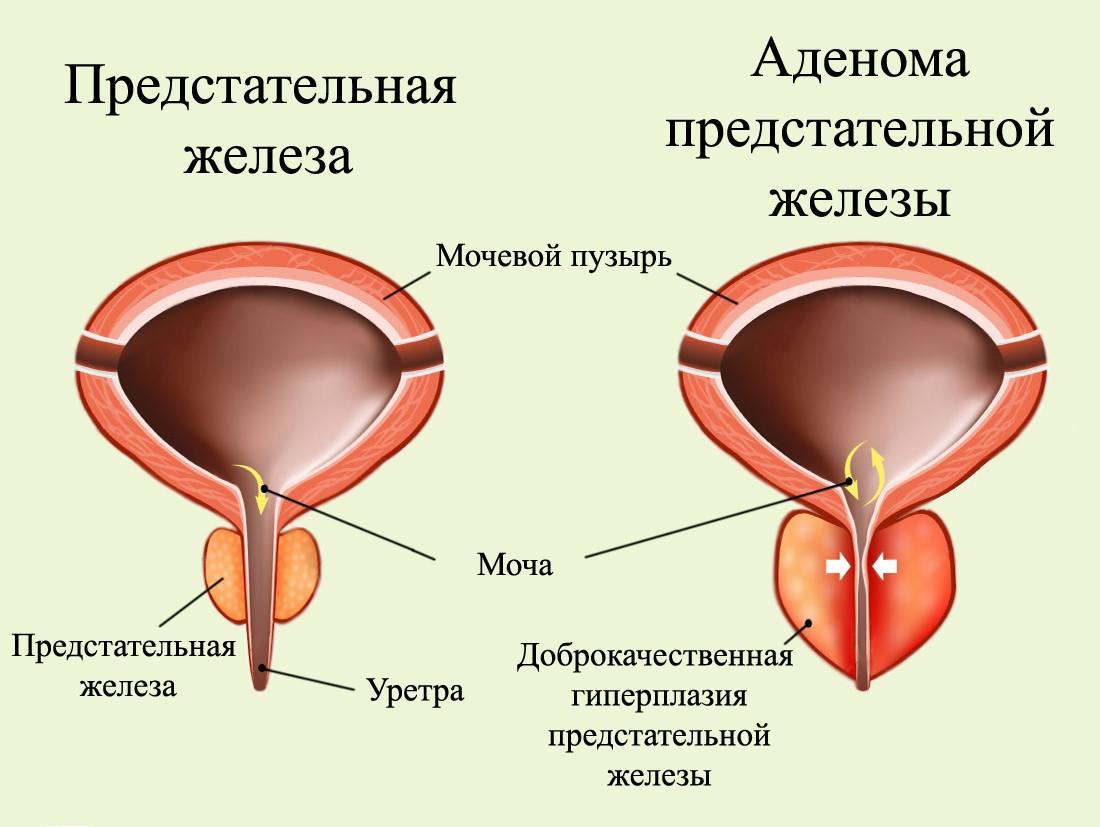 Аденома и сопутствующий простатит может ли простатит передаваться через женщину