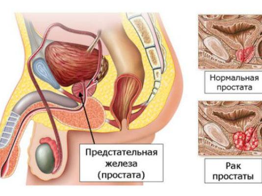 Причины возникновения рака простаты у мужчин