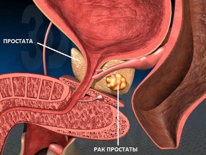 Рак аденомы простатита лечение