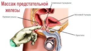 Массажи лечебные простатита