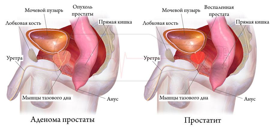 Чем отличается аденома простаты от простатита - Простатит